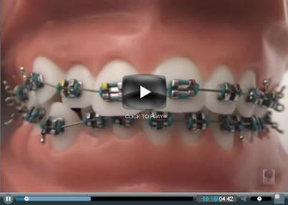 video-braces-1